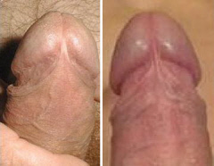 Uncircumcised Penis Sex