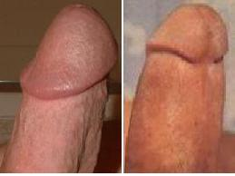 Small cuts below tip of penis, what do I need to cure
